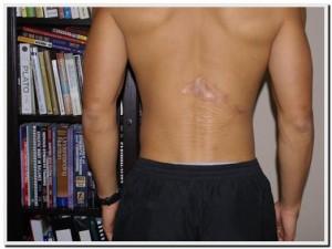back scar