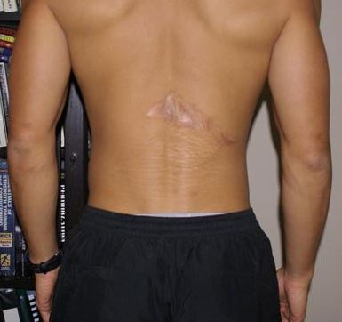 back-scar